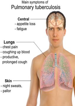Tuberkolose